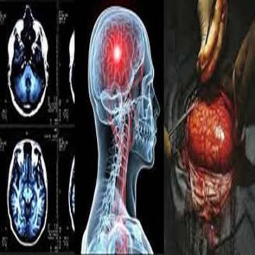 Neurology / Neurosurgery